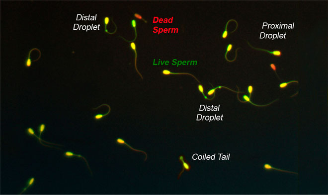 Sperm Classification